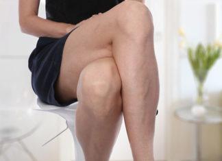 Usuwanie żylaków - skleroterapia, jak działa
