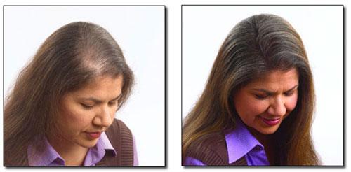 Metoda kanapkowa zagęszczania włosów